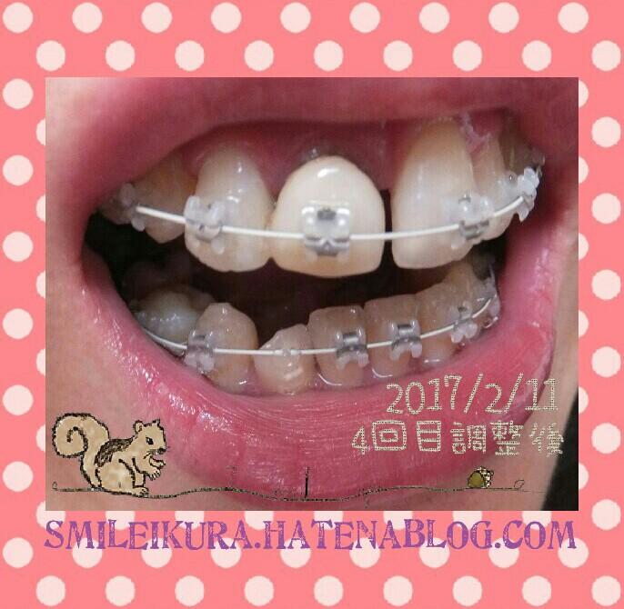 f:id:smileikura:20170211145241j:plain