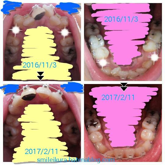 f:id:smileikura:20170211145636j:plain