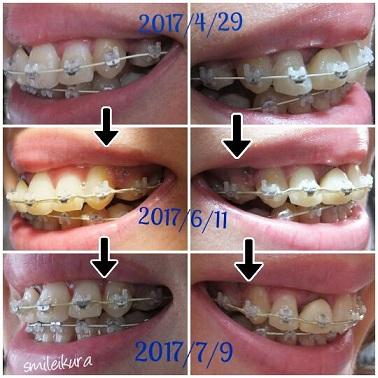 f:id:smileikura:20170709132956j:plain