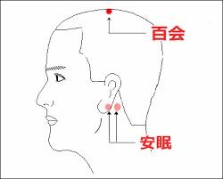 f:id:sohachiacupuncture:20180613153952j:plain
