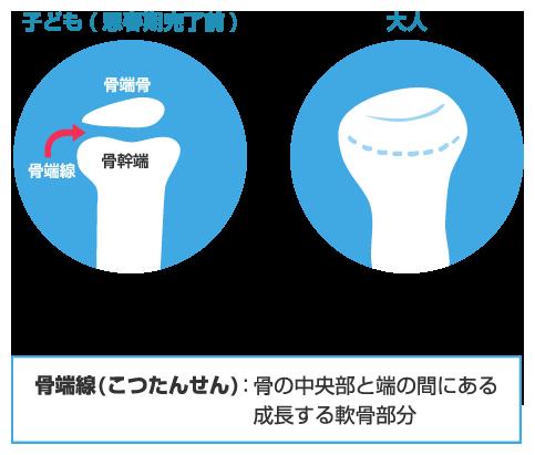 f:id:spade02:20170126221410p:plain