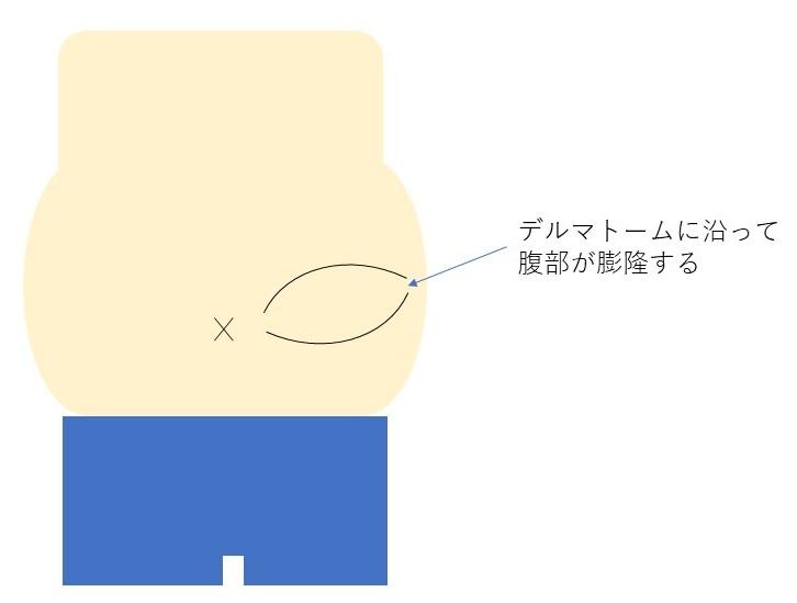 f:id:spine_neuro:20210316174942j:plain
