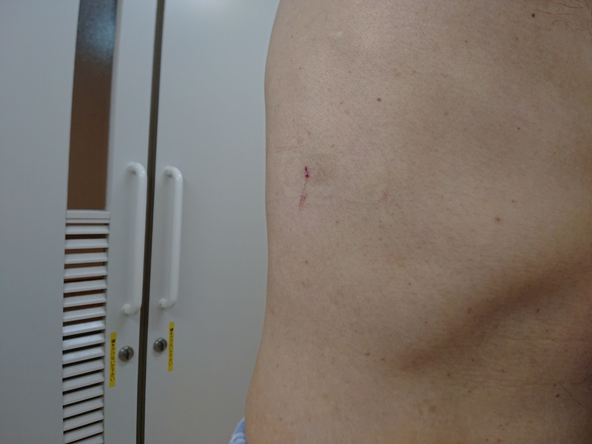 肝生検 傷跡 針