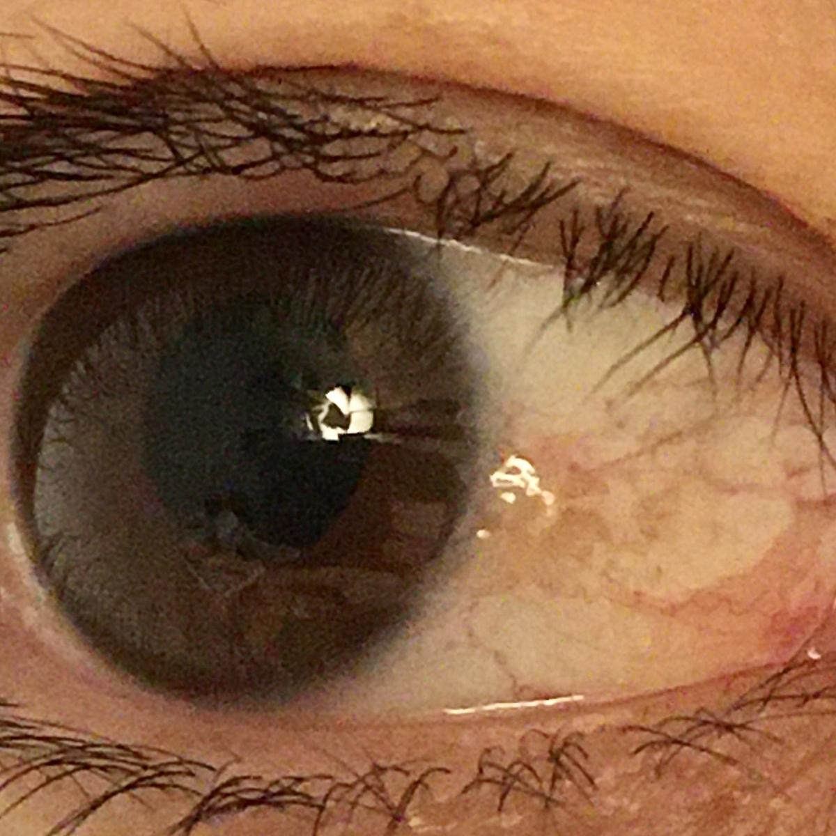 点 白い 黒目 に