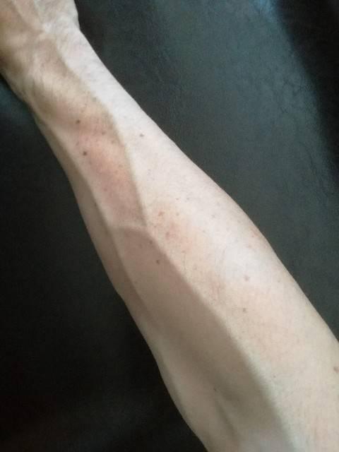 皮膚のシミと溶接歴は比例する?ここまでヒドイ溶接アーク光の紫外線