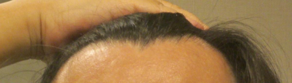 イクオス 前髪の薄毛に効果はあるのか・・