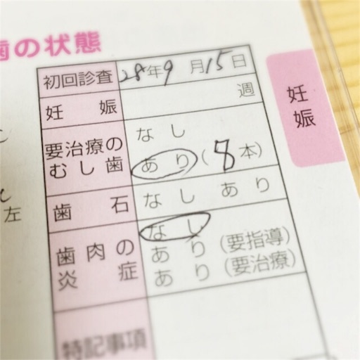 f:id:subeteyoshi:20160915154353j:image
