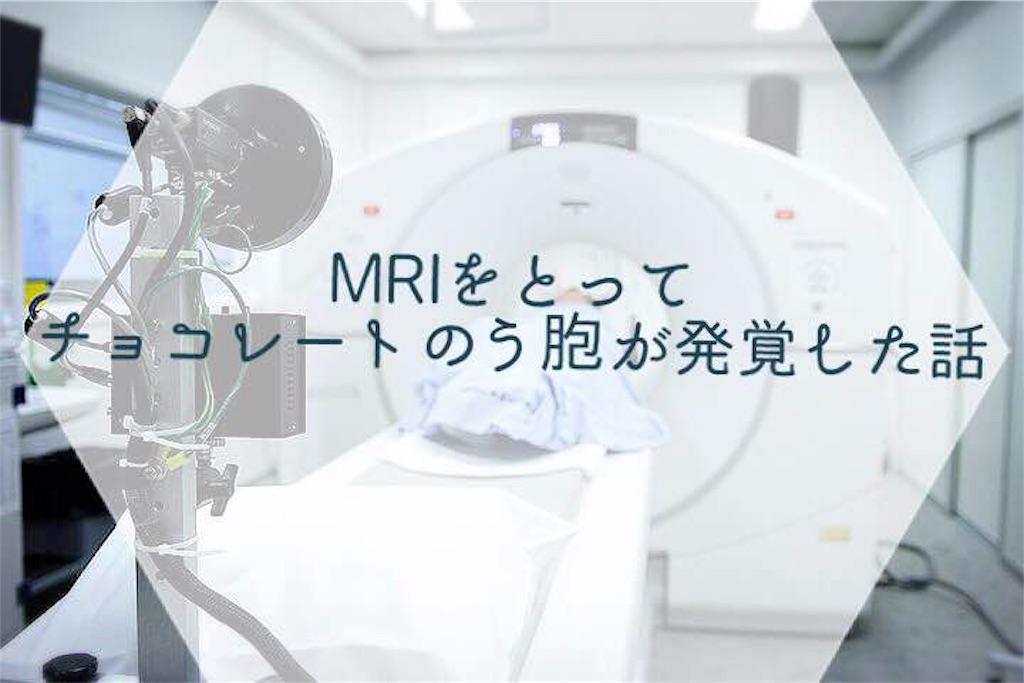 f:id:suikanoasobi:20181130155045j:image