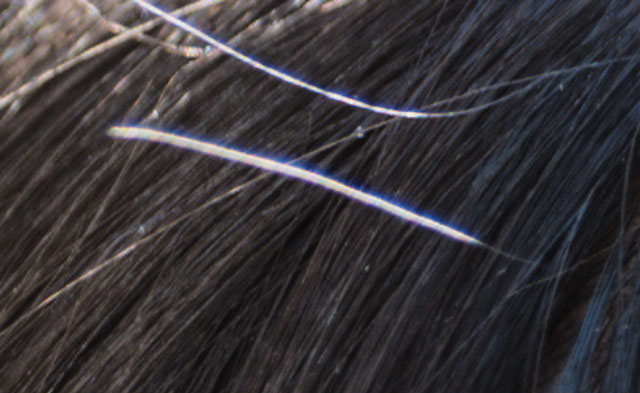 複雑な場所に重なった髪の毛もパッチツールで消せる