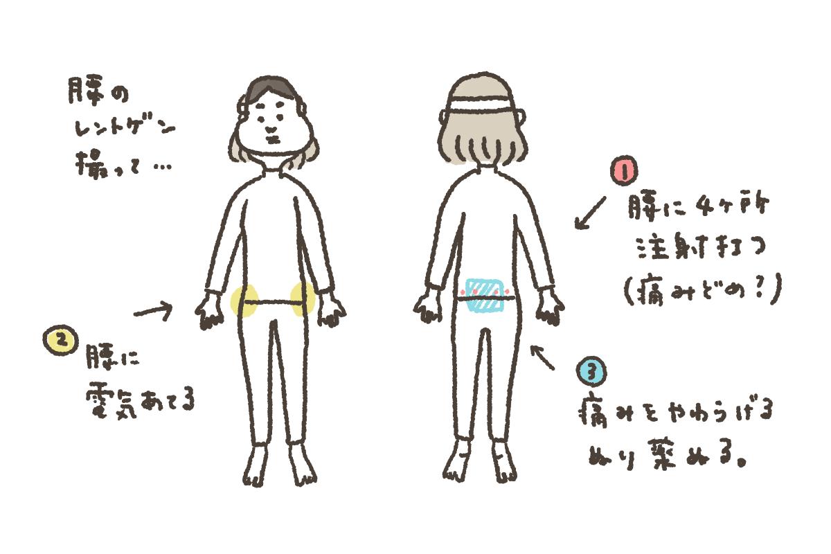 足腰の痛みで私が受けた治療を説明するイラスト