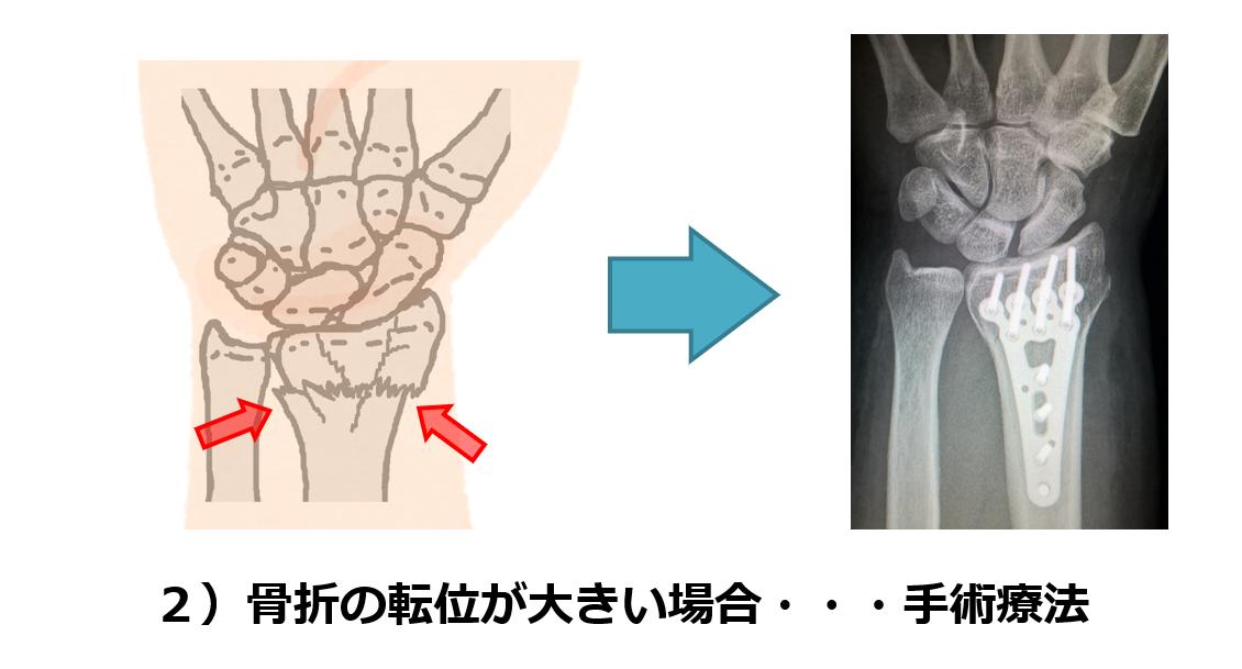 f:id:sunao-hiroba:20190516230246p:plain