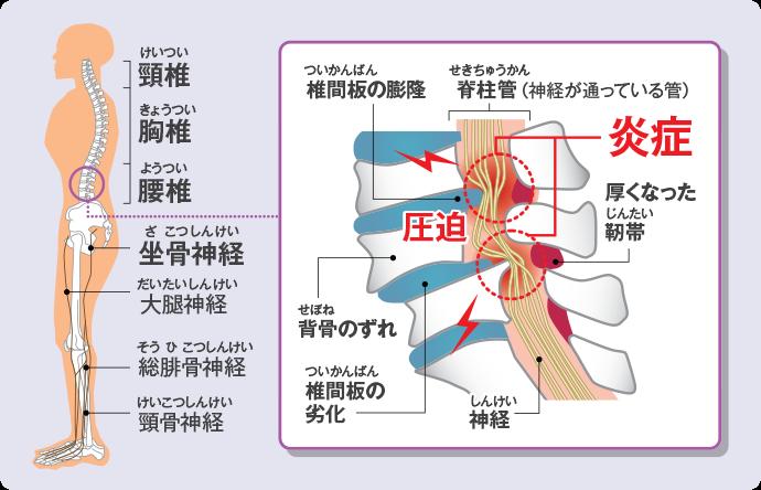 f:id:sunao-hiroba:20190810113029p:plain