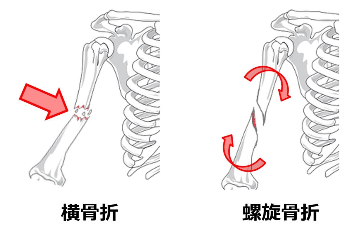 f:id:sunao-hiroba:20200807213126p:plain