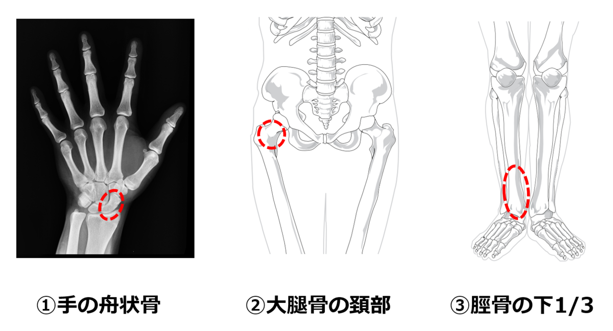 f:id:sunao-hiroba:20210306143637p:plain