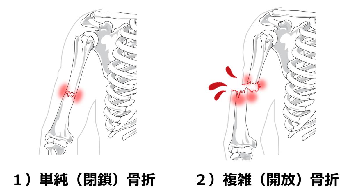 f:id:sunao-hiroba:20210306143950p:plain