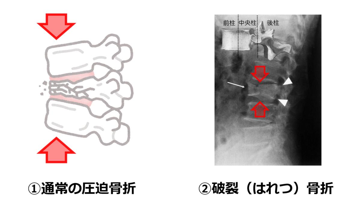 f:id:sunao-hiroba:20210723171909p:plain
