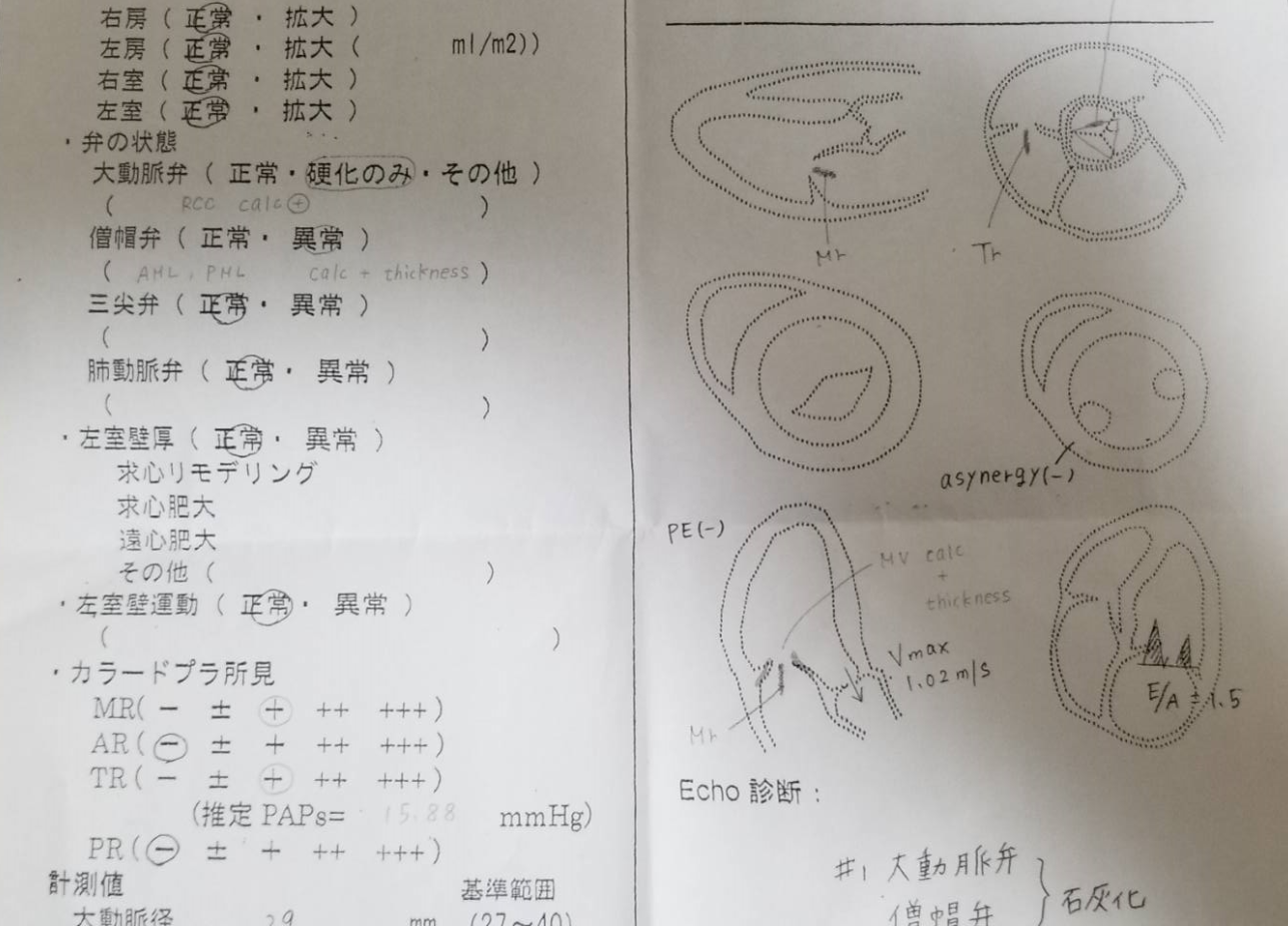 f:id:sunchan33:20200126005528p:plain