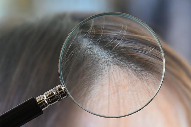 L-レジン嬉しい白髪への効果