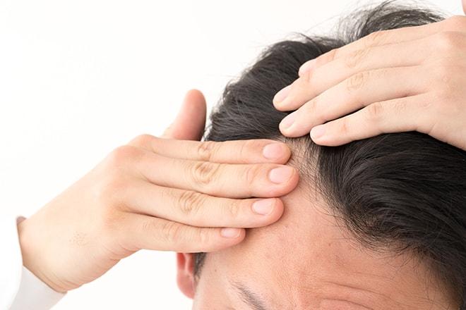 気になる育毛への効果