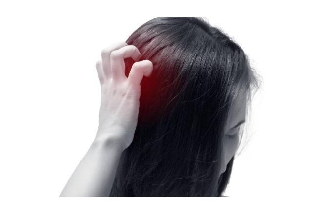 白髪染めをしたら、かゆみや赤みが出た…それってアレルギーかも!