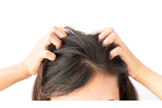 白髪が原因でかゆくなったらどうすればいいの? やってはいけない対応は?