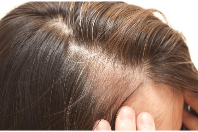 オルニチンで白髪を予防するためには