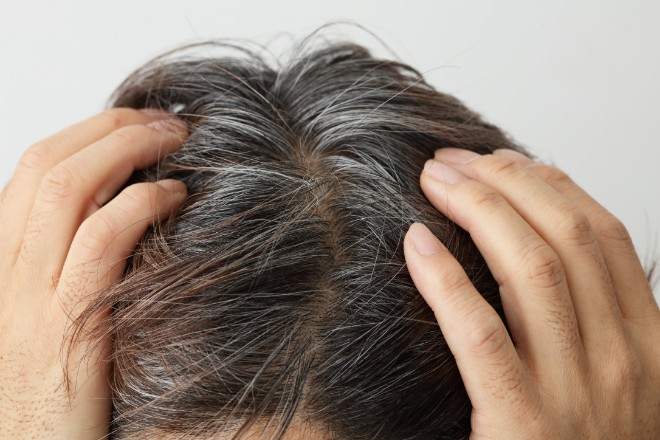 うねる、パサつく、ツヤがなくなる…白髪の悩みは意外に多い!