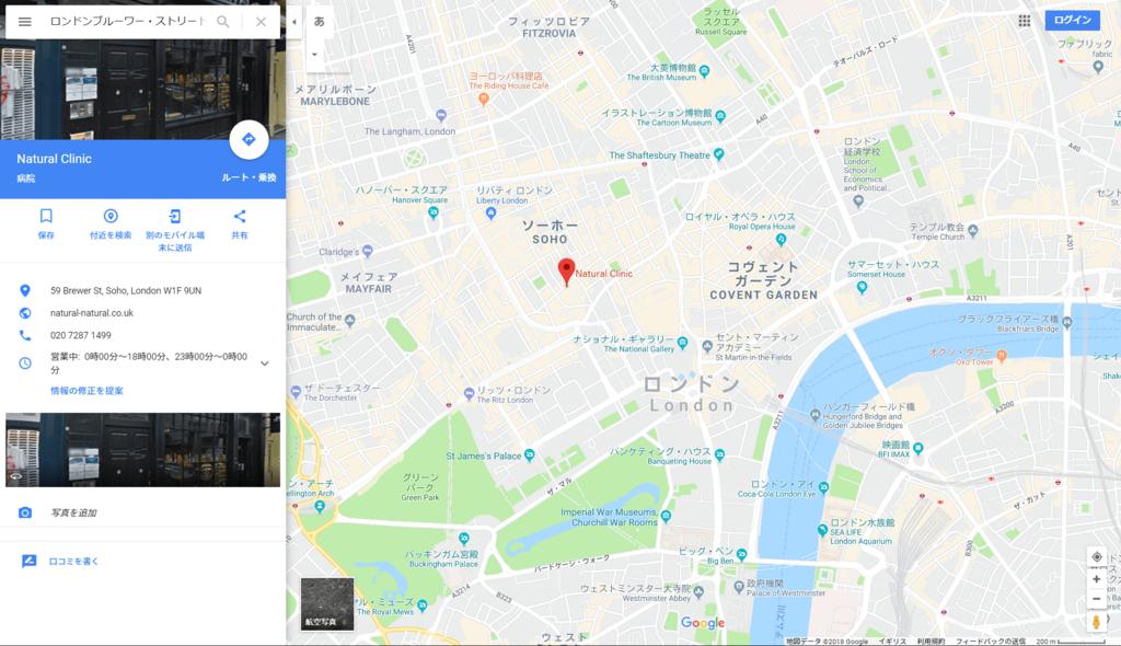 f:id:suzunomi:20180205013733p:plain