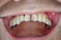 上の奥歯のインプラント