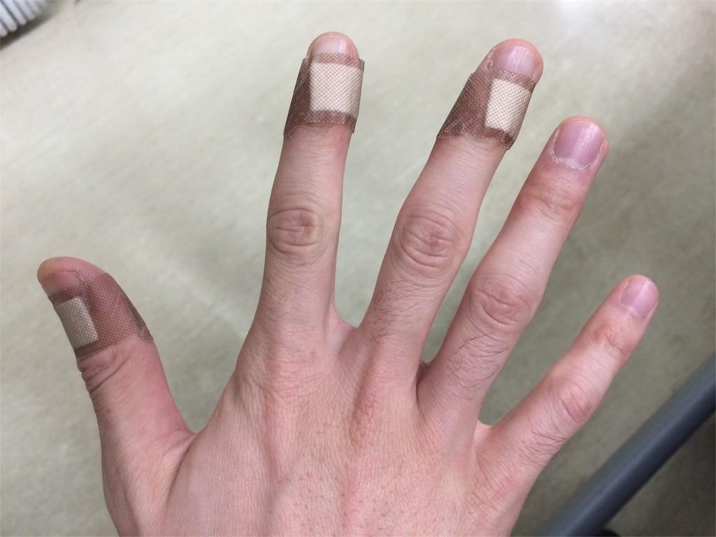 さかむけの指と手