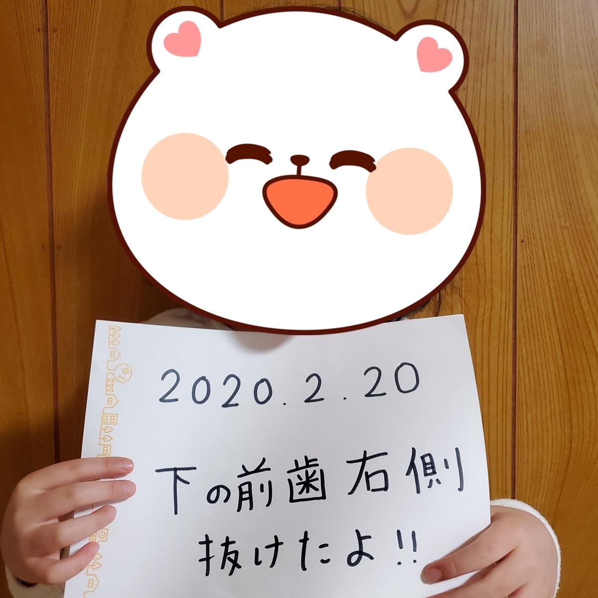 f:id:sylvaniantedukuri:20200221205658j:plain