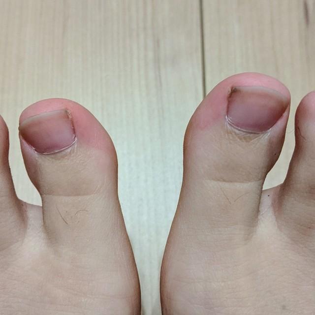 ムダ毛伸び放題の足の指の写真