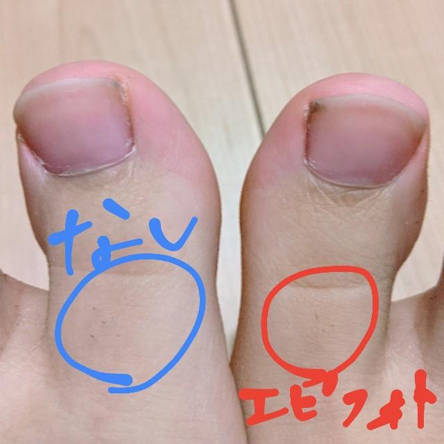ムダ毛伸び放題から毛をそった状態の足の指の写真
