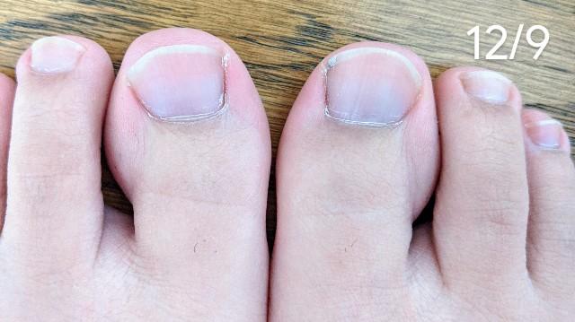 足の指の毛の伸び具合確認の写真
