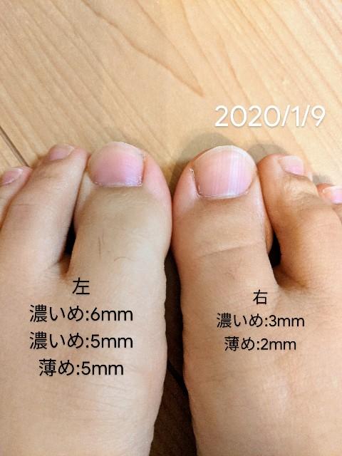 エピフォトを当てた右足の指のほうが伸びが遅い写真