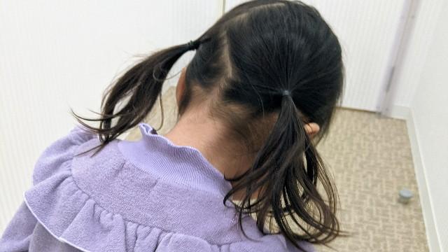 2歳半の子どもの後頭部の写真