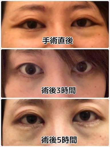 f:id:tabishite_korea:20210415192542j:image