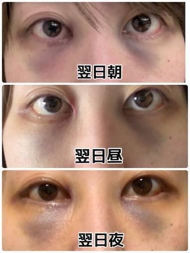 f:id:tabishite_korea:20210416145433j:image