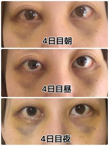 f:id:tabishite_korea:20210419092718j:image