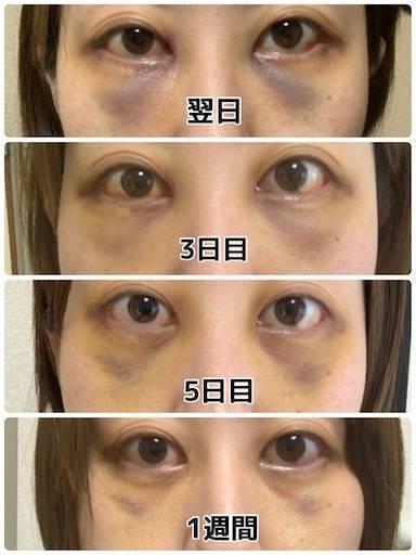 f:id:tabishite_korea:20210422091257j:image