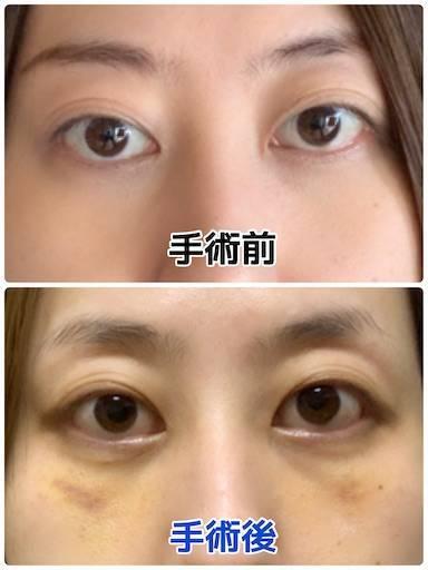 f:id:tabishite_korea:20210426100235j:image