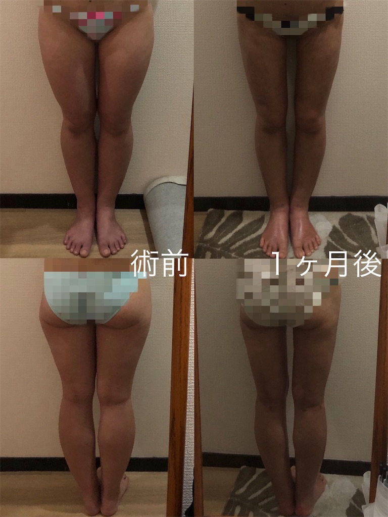f:id:tabisuki-schan:20190423192732j:image