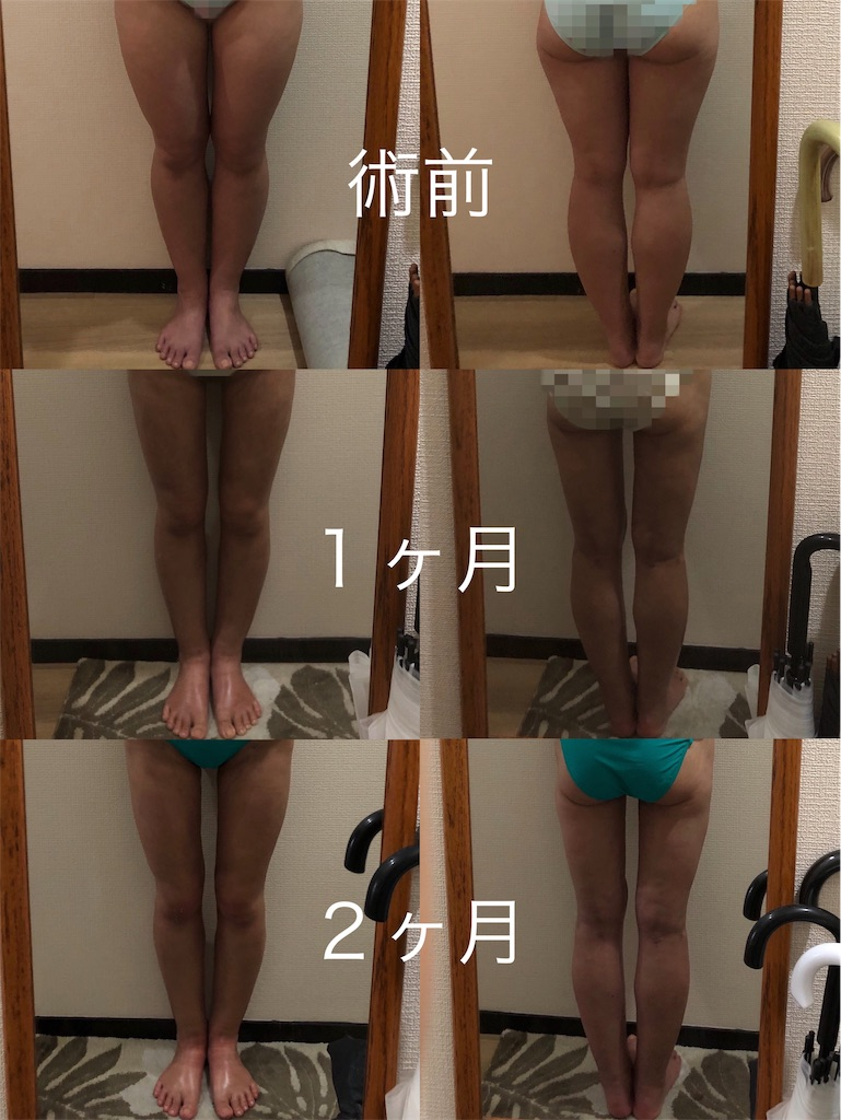 f:id:tabisuki-schan:20190602100350j:image