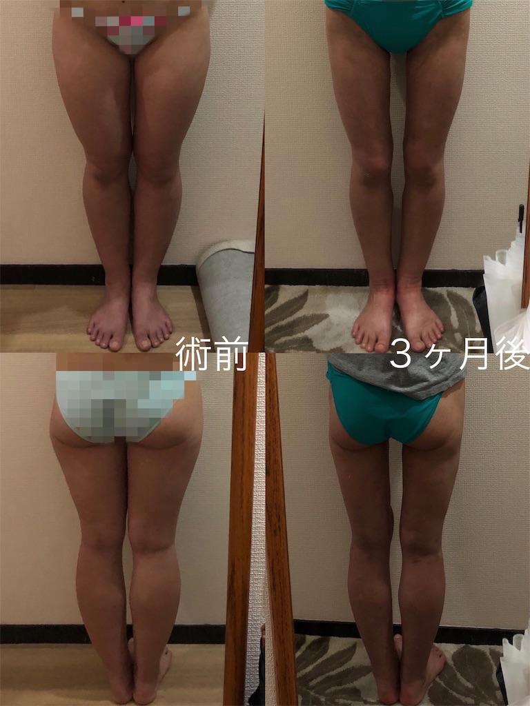 f:id:tabisuki-schan:20190704082159j:image