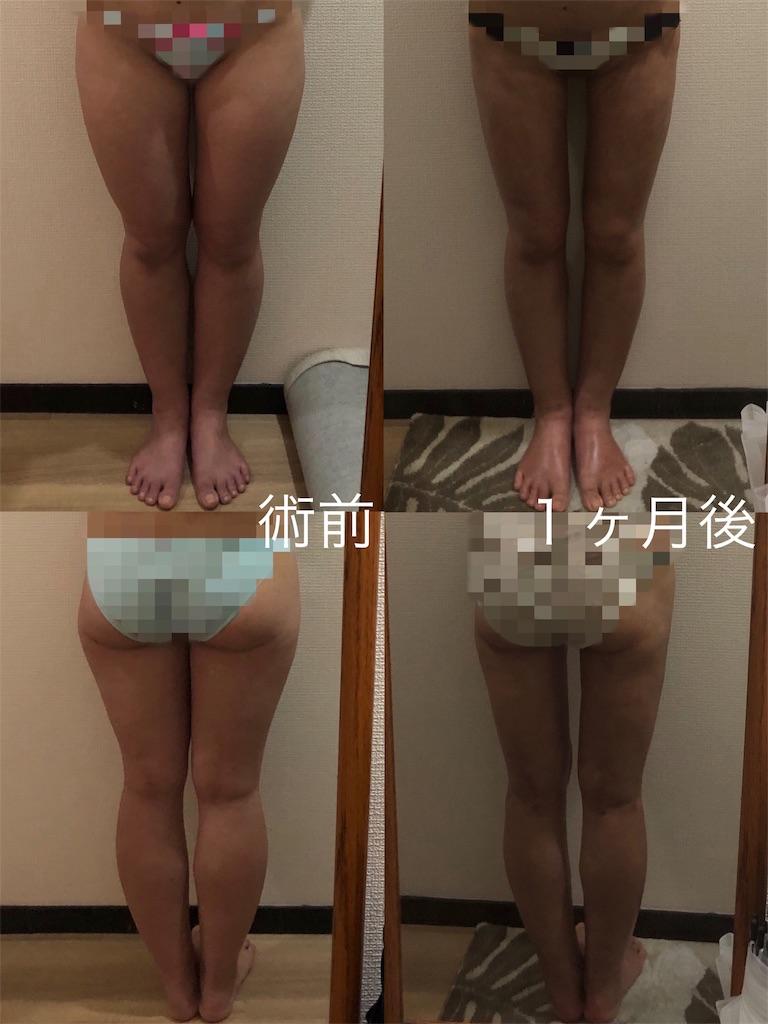 f:id:tabisuki-schan:20190707075005j:image