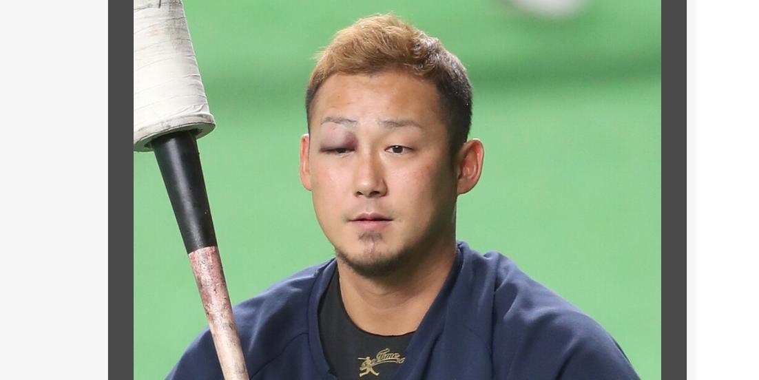 日本ハム中田翔!試合中にベンチ裏で転倒し右目付近を強打