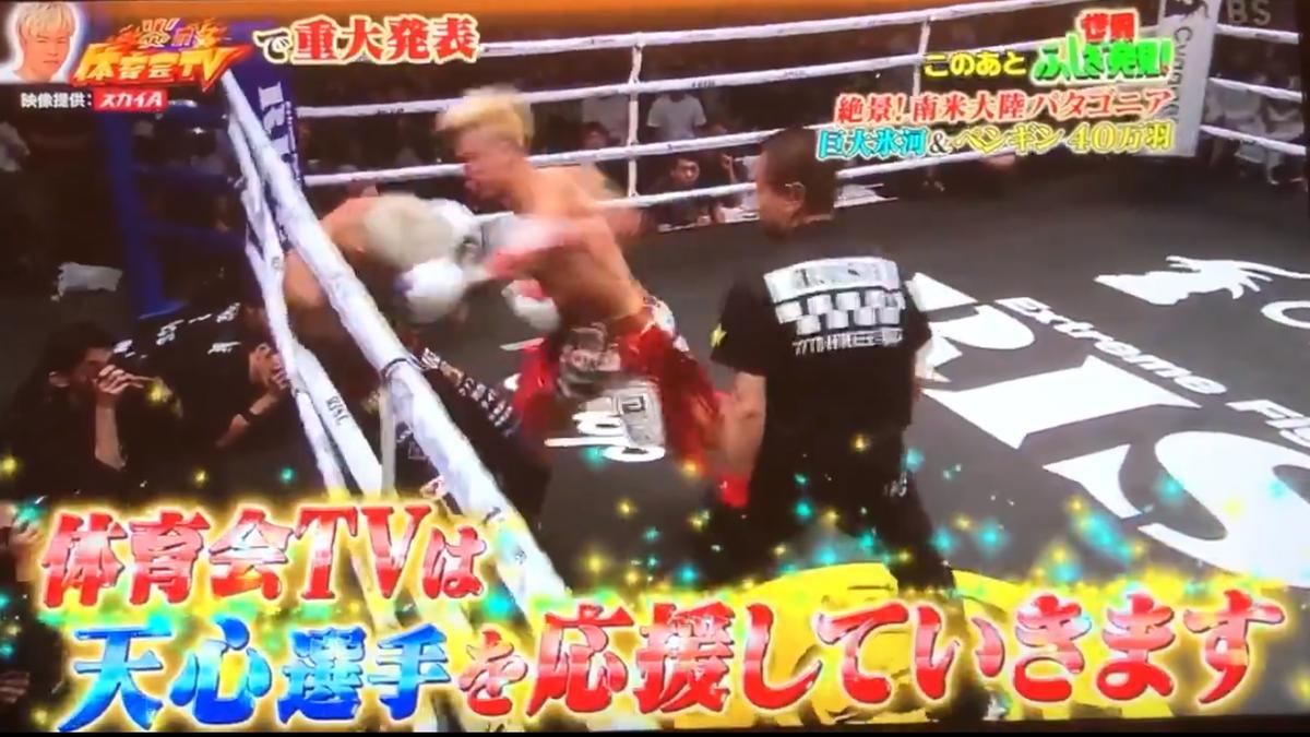 那須川天心がボクシング転向「重大発表」3月でキックボクシング引退