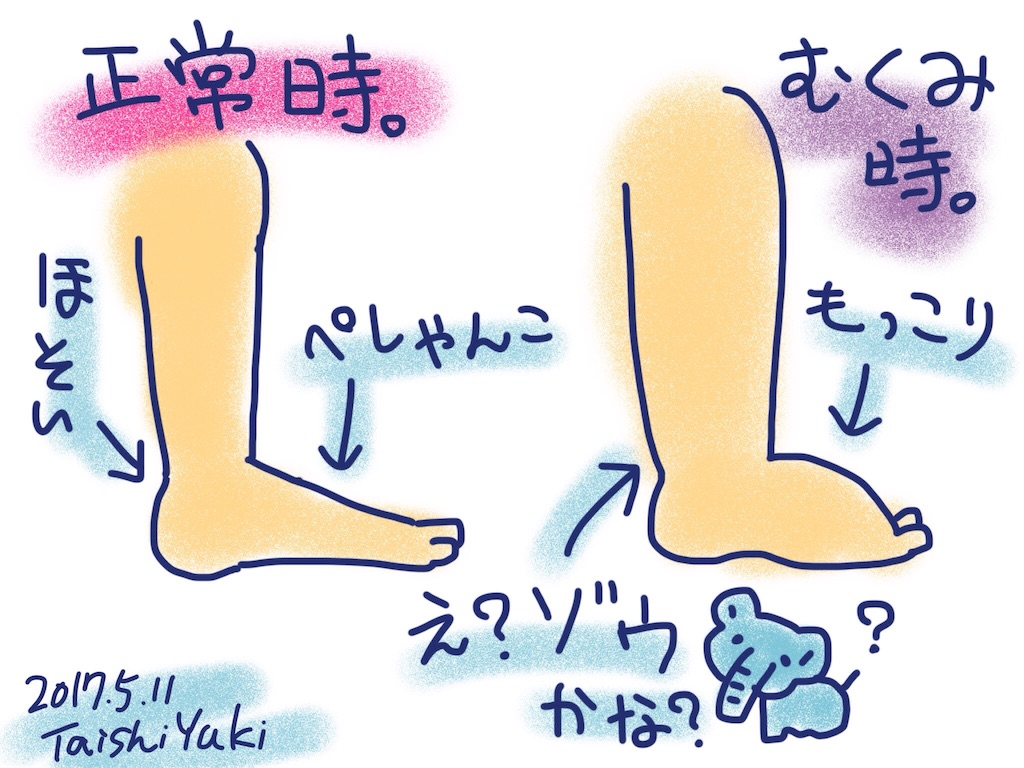 f:id:taishiyuki:20170511201259j:image