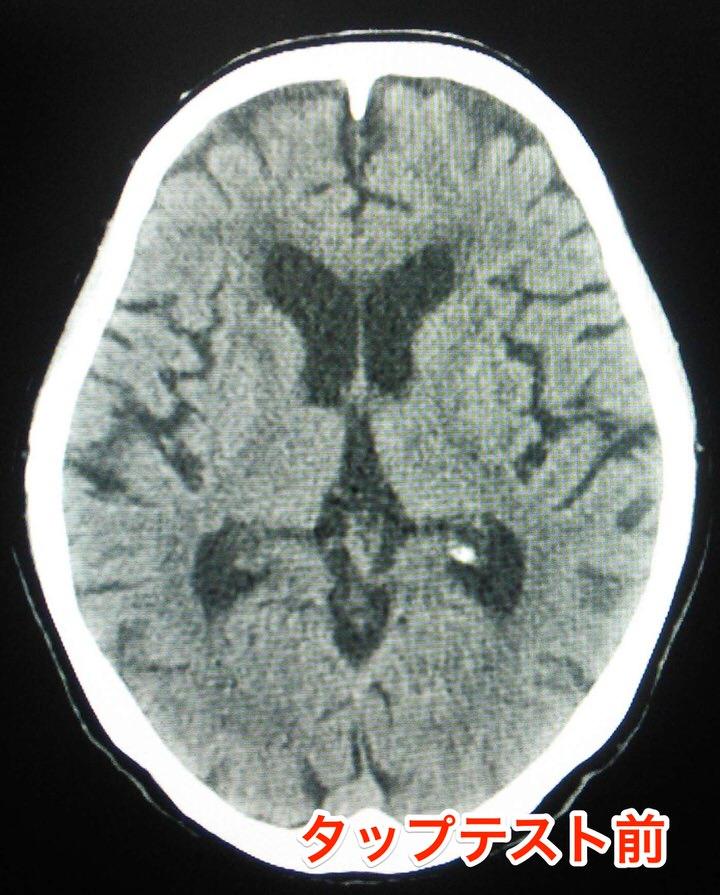 タップテスト前の頭部CT