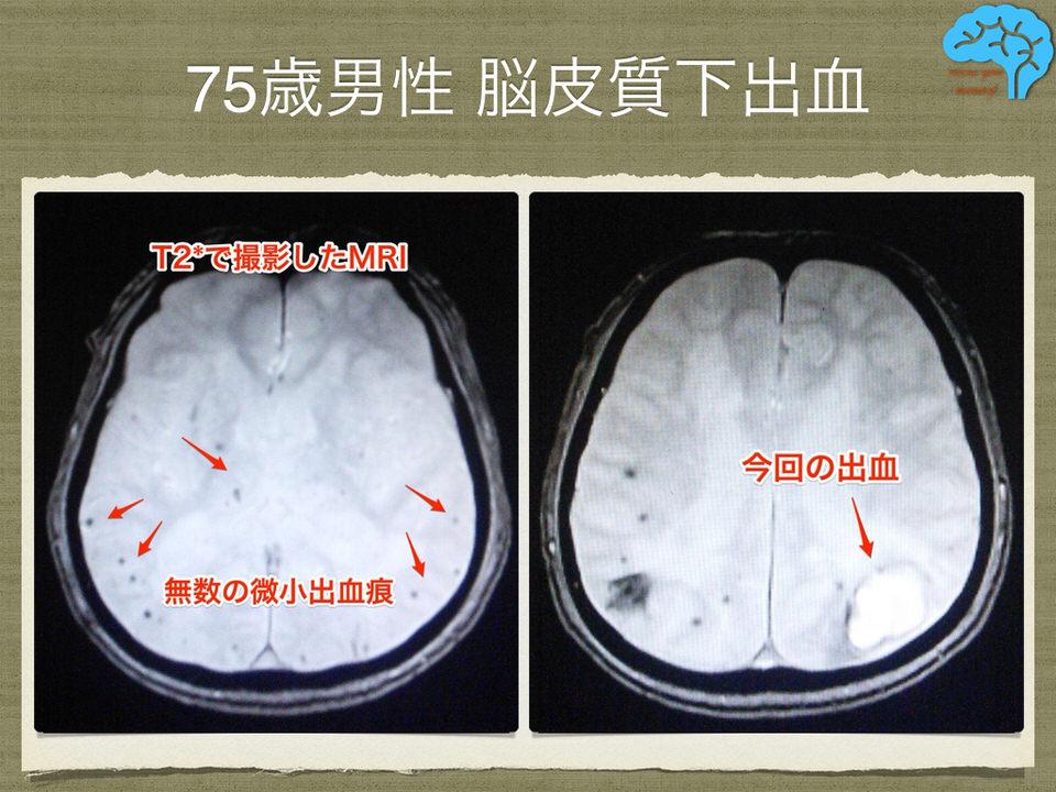 脳皮質下出血のMRI画像